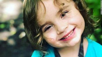 Một bé gái 4 tuổi ở lowa bị mù vì mắc cúm