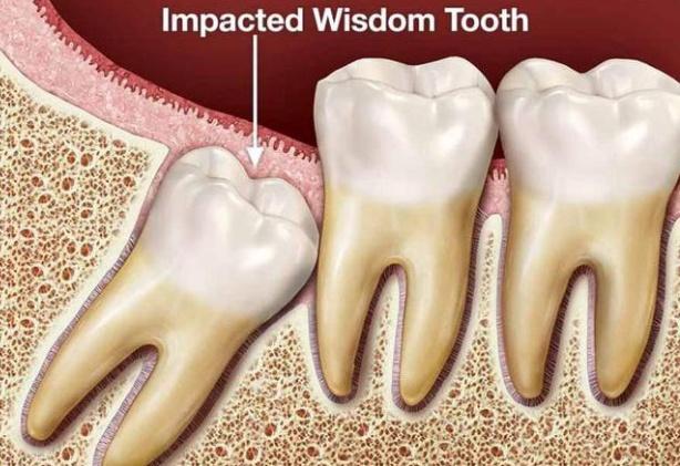 Răng có khôn?