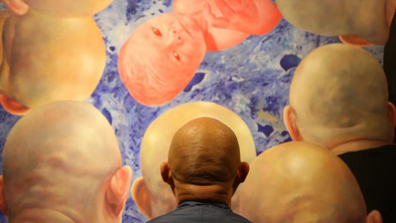 Bị rụng tóc ngày càng tăng, đàn ông châu Á vật lộn với việc hói đầu.