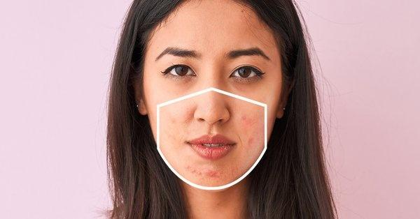 Tại sao khuôn mặt của bạn bị nổi mụn sau khi sử dụng khẩu trang?