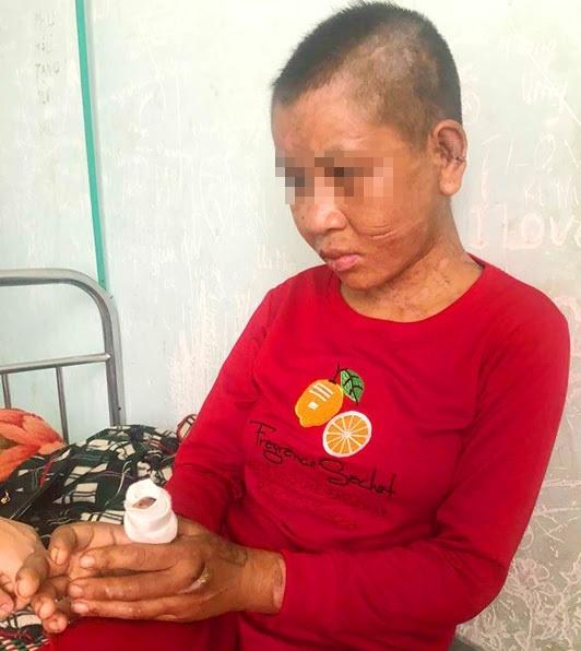 Người làm công bị chủ đánh đập dã man ở Gia Lai