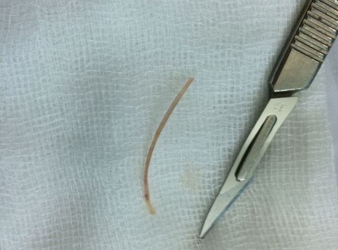 Liên tiếp phẫu thuật nội soi gắp xương cá, tăm xỉa răng từ bụng bệnh nhân