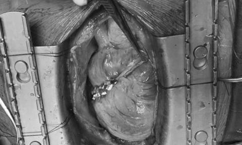 Cứu sống người đàn ông bị vỡ buồng tim do bị té tại nhà