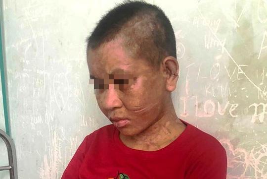 Chủ tịch tỉnh Gia Lai chỉ đạo hỏa tốc điều tra vụ thiếu nữ bị tra tấn như thời trung cổ