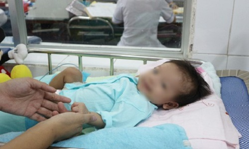 Phẫu thuật thành công cho bé gái 2 tháng tuổi mắc căn bệnh hiếm gặp trên thế giới