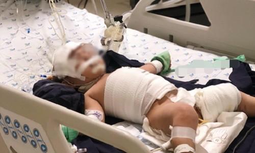 Bé gái 20 tháng tuổi tróc da toàn thân do bỏng nước sôi