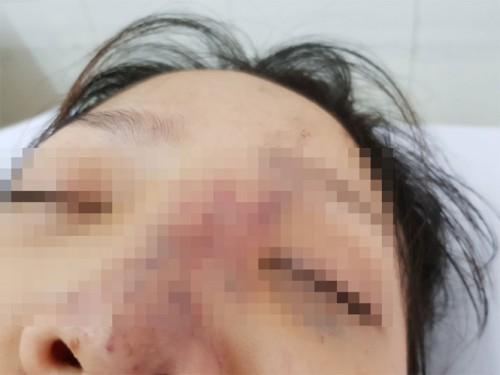 Tiêm filler với giá 600.000 đồng ở spa, thiếu nữ phải nhập viện cấp cứu
