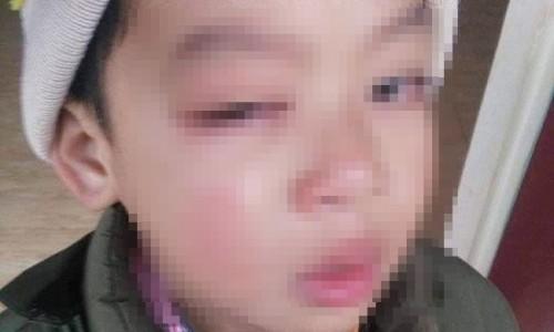 Lạng Sơn: Làm rõ vụ phụ huynh tố học sinh lớp 1 bị cô giáo đánh tổn thương mắt, có nguy cơ bị mù