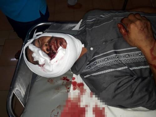 Gia Lai: Hỗn chiến lúc bàn chuyện làm ăn, một người đàn ông bị đánh bằng tuýp sắt đến tử vong