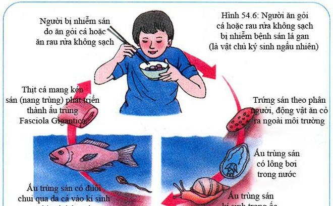 800 con sán lá gan được lấy ra từ ống mật của người hay ăn gỏi cá