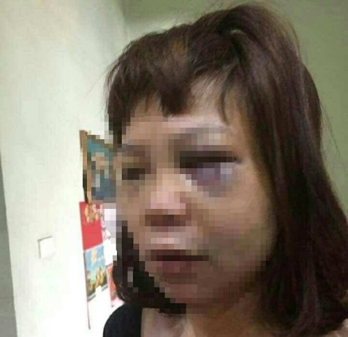 Quảng Ninh: Điều tra vụ vợ bị chồng đánh đập, cắt gân trên đồi vắng