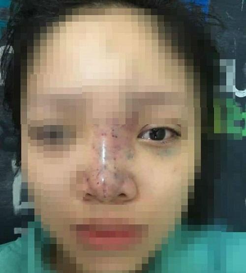 Nữ sinh mù mắt khi tiêm filler ở spa không phép: Chủ cơ sở có dấu hiệu tẩu tán đồ đạc bỏ trốn