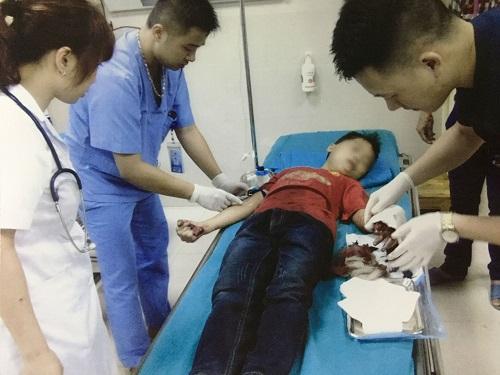 Tuyên Quang: Bé trai bị đứt lìa ngón tay khi thái rau chuối