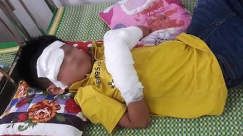 Nổ điện thoại đang sạc, bé trai 7 tuổi dập 2 bàn tay, tổn thương mắt