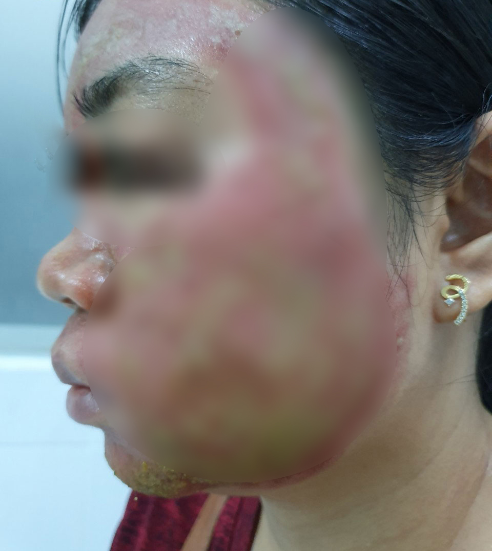 Lăn kim làm đẹp - một phụ nữ bị nhiễm trùng nặng