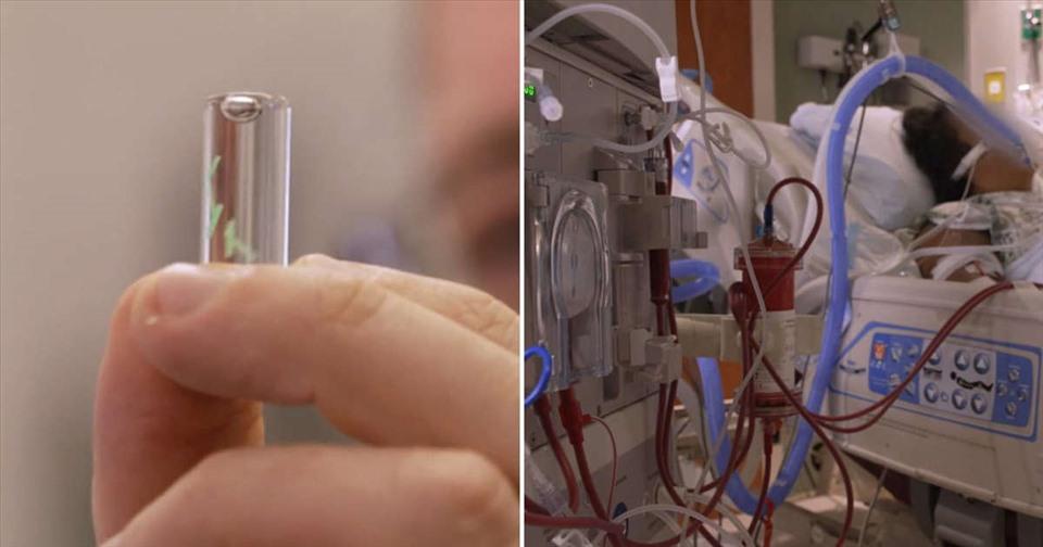 Các nhà khoa học Mỹ chế tạo vi mạch dưới da phát hiện COVID-19