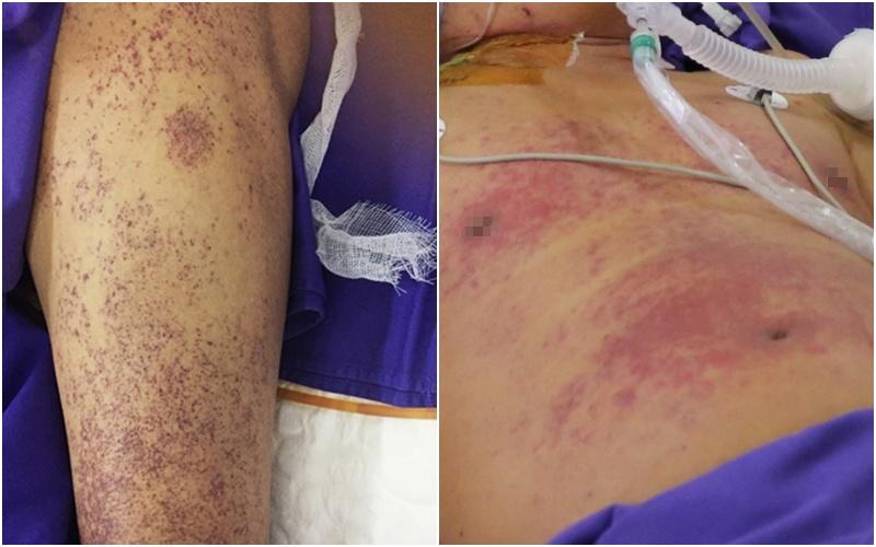 Quảng Ninh: Người đàn ông nguy kịch do nhiễm khuẩn liên cầu lợn