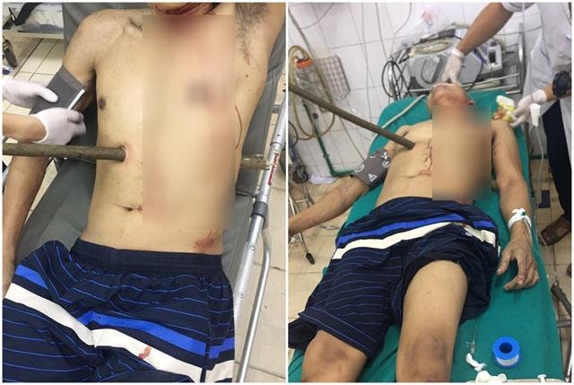Quảng Ninh: Cứu sống người đàn ông bị cọc gỗ đâm xuyên người