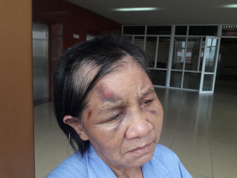 Quảng Ninh: Cháu trói tay, đánh bà ngoại gãy 5 xương sườn