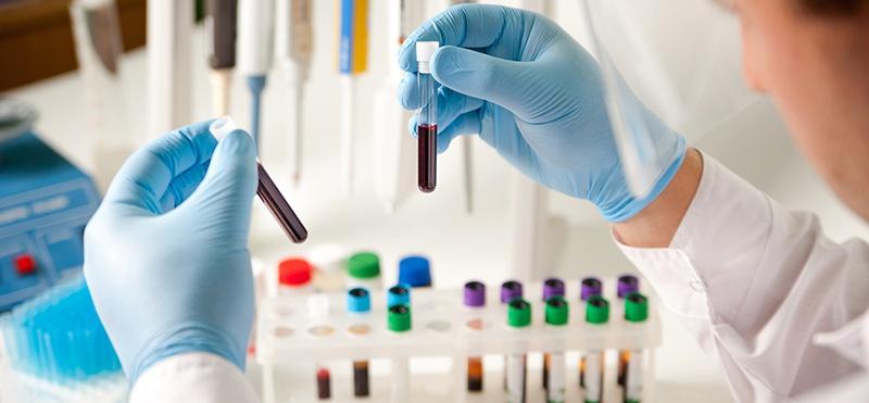 Quảng Ngãi: Chuyên gia người Serbia nhiễm COVID-19 âm tính sau 9 lần xét nghiệm