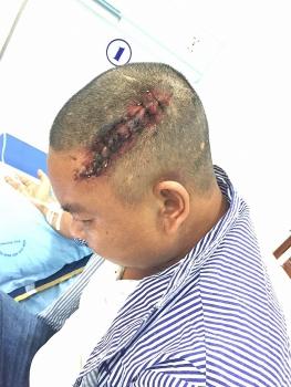 Hải Phòng: Cần sớm xử lý nghiêm đối tượng hành hung, gây thương tích