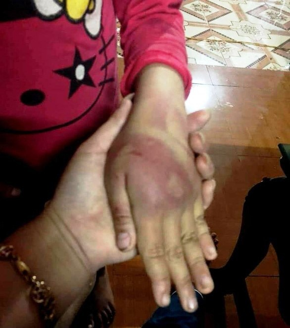 Bố bị phạt 2,5 triệu đồng vì đánh bầm dập con gái 8 tuổi ở Triệu Sơn Thanh Hóa