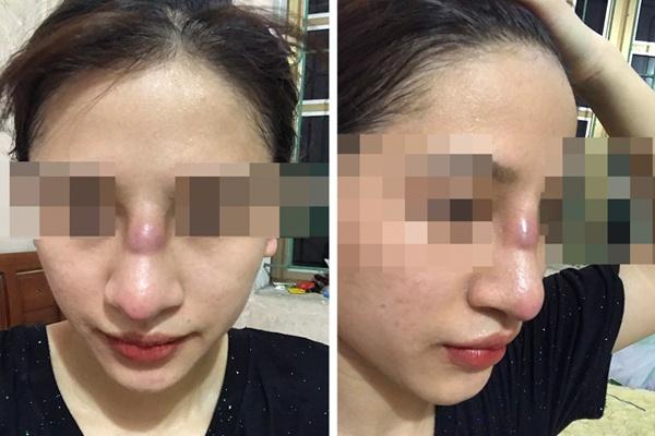 Quảng Ninh-thiếu nữ suýt thủng mũi sau làm đẹp ở spa
