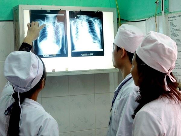 Việt Nam có số bệnh nhân mắc nấm phổi xâm lấn cao nhất thế giới