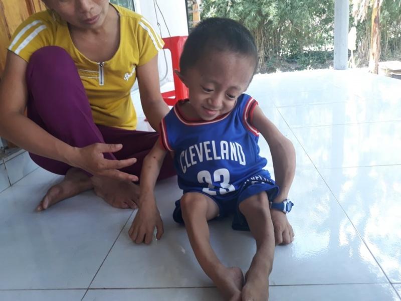 Một đứa bé mang hai căn bệnh quái ác
