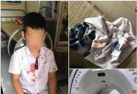 Điều tra việc phụ huynh bạo hành học sinh lớp 1 ở Hòa Bình