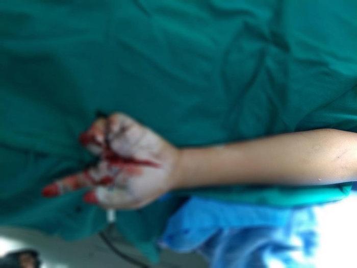 Một bé trai bị thương nặng do  pháo nổ