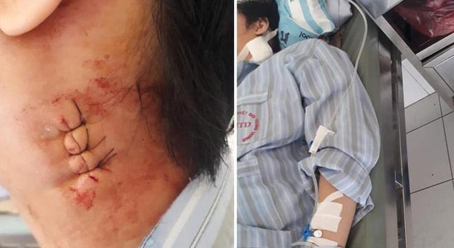 BV Bạch Mai bị tố mổ nhầm cho bệnh nhân gây biến chứng